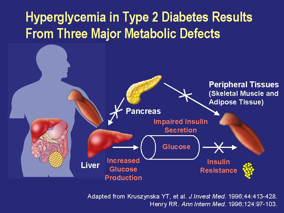 Slide 26 Hyperglycemia in Type 2 Diabetes Results From Three Major Metabolic Defects.