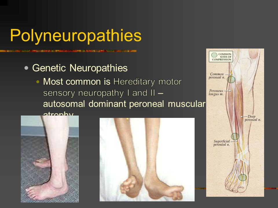 Distal hereditary motor neuropathy type vi for What is motor neuropathy