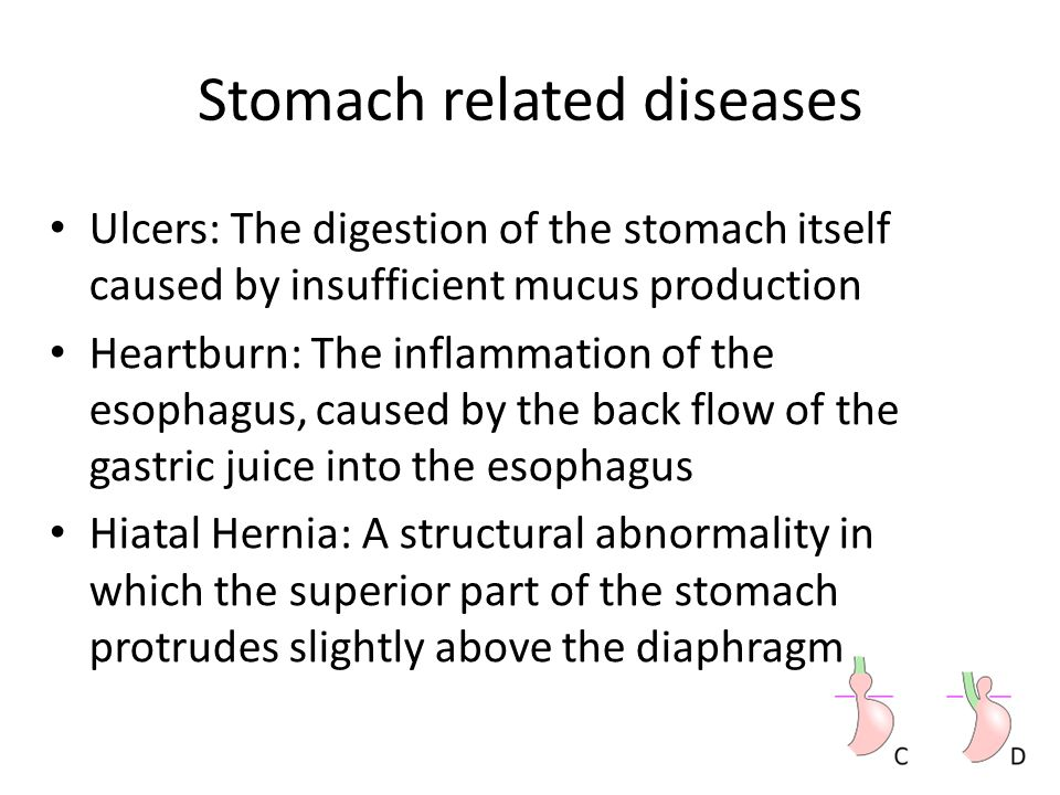 Stomach related diseases