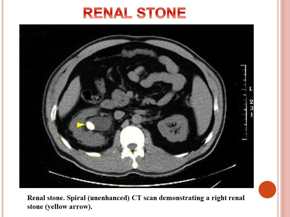 computed tomography ii � rad ppt video online download