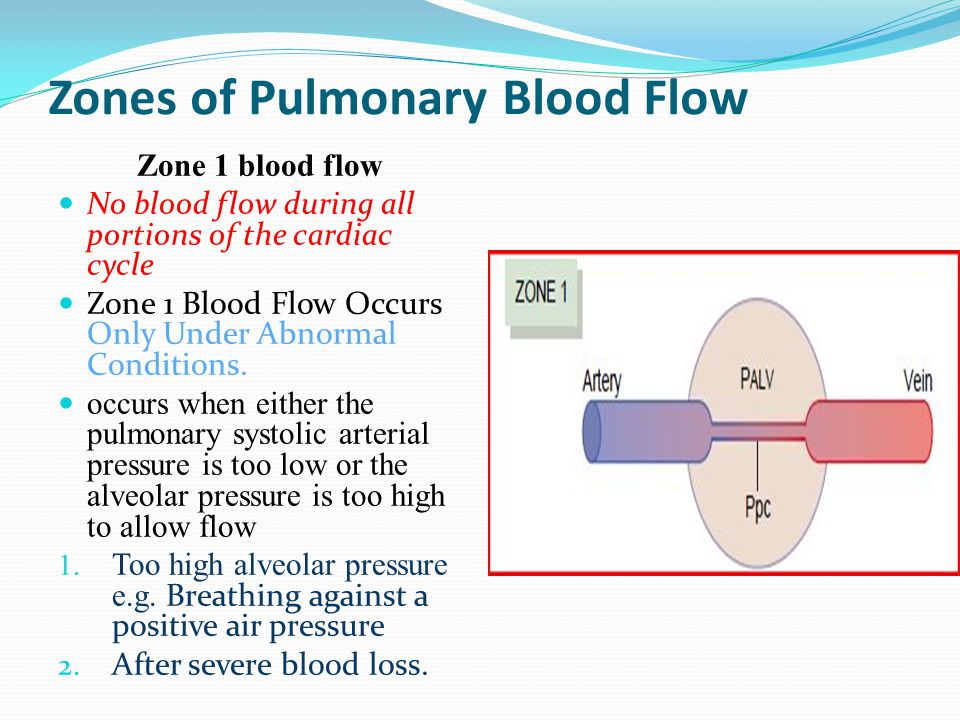 Zones of Pulmonary Blood Flow
