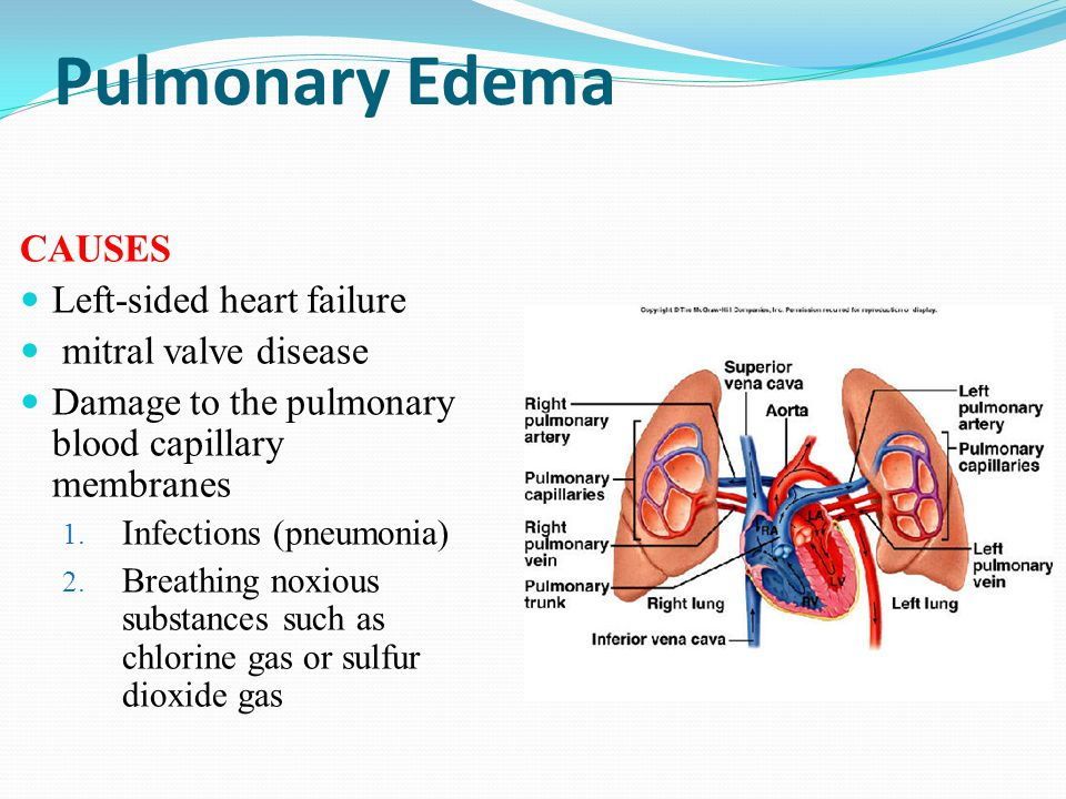 Pulmonary Edema CAUSES Left-sided heart failure mitral valve disease