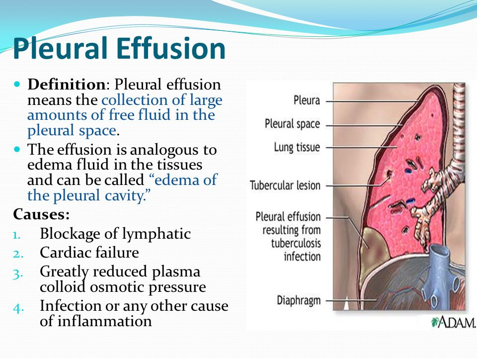 Pleural Effusion Definition: Pleural effusion means the collection of large amounts of free fluid in the pleural space.