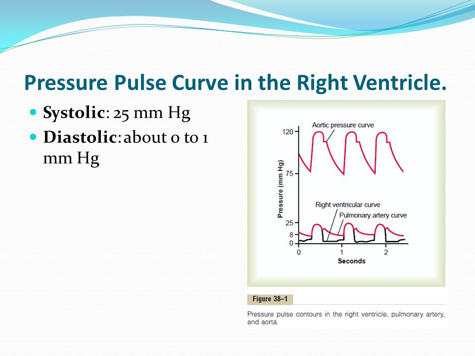 Pressure Pulse Curve in the Right Ventricle.