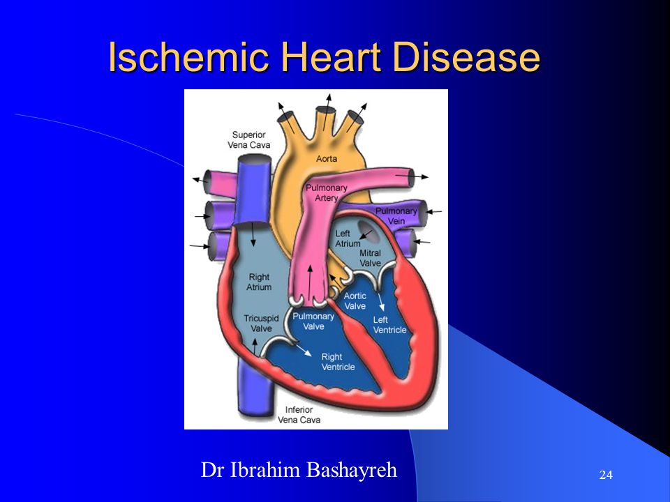 management of ischemic heart disease pdf