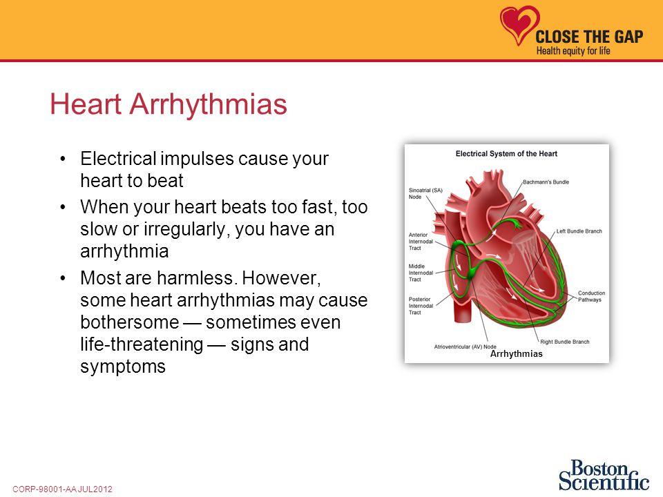 Viagra And Heart Arrythma