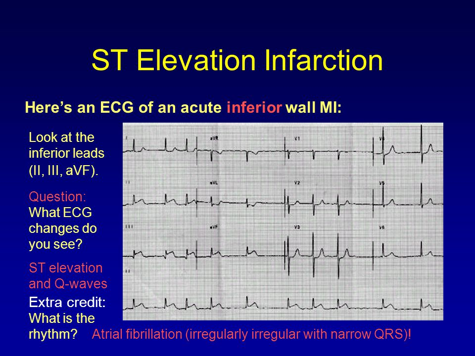 ST Elevation Infarction
