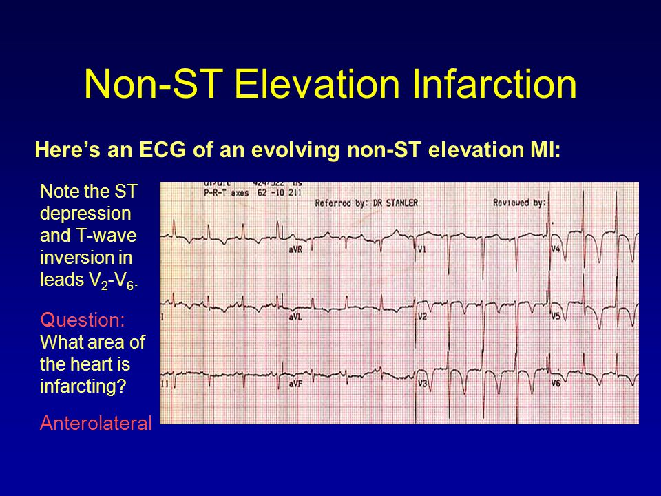 Non-ST Elevation Infarction