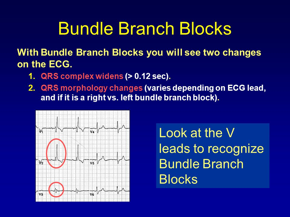 Bundle Branch Blocks With Bundle Branch Blocks you will see two changes on the ECG. QRS complex widens (> 0.12 sec).