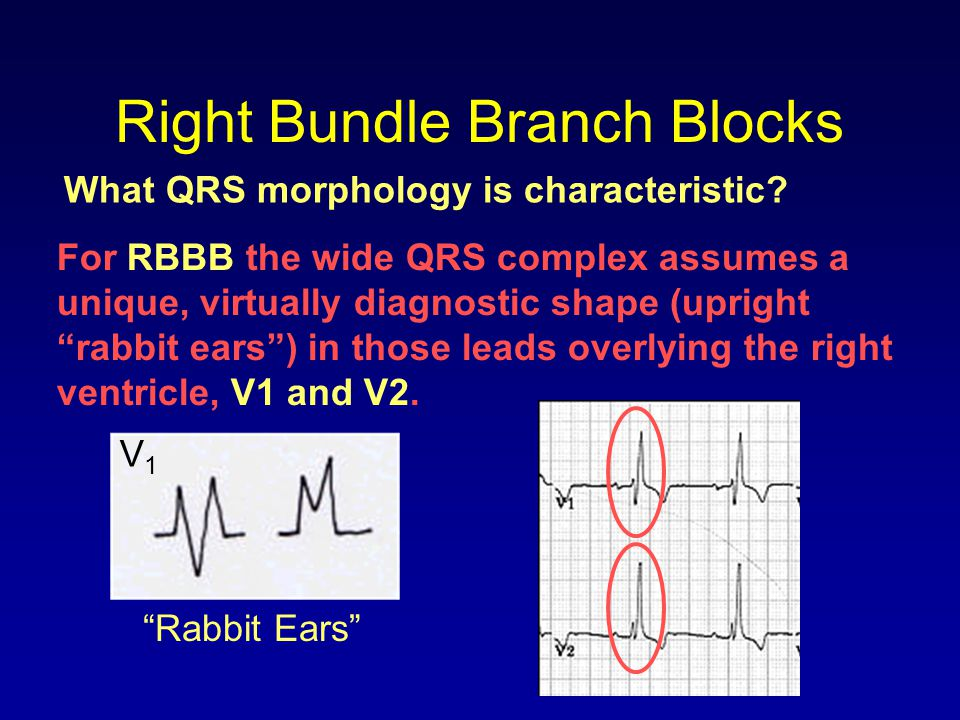 Right Bundle Branch Blocks