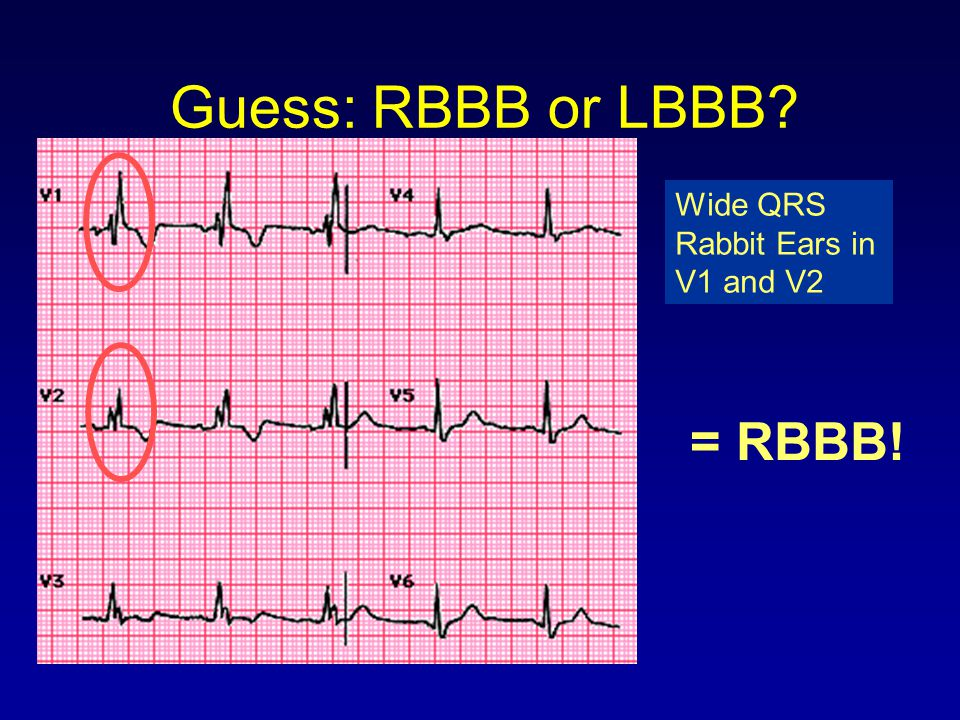 Guess: RBBB or LBBB Wide QRS Rabbit Ears in V1 and V2 = RBBB!