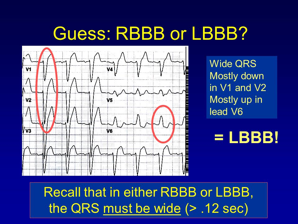 Guess: RBBB or LBBB = LBBB! Recall that in either RBBB or LBBB,