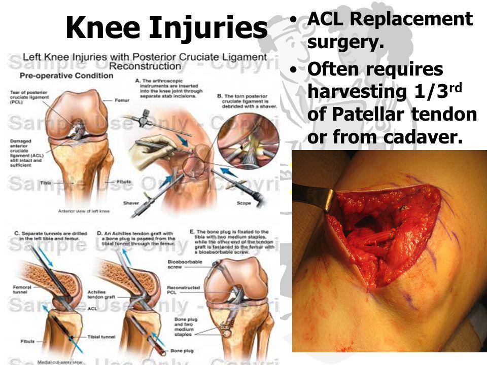 Left knee anatomy