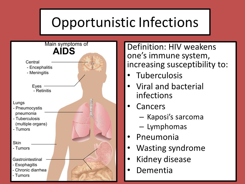 understanding the human immunodeficiency virus hiv