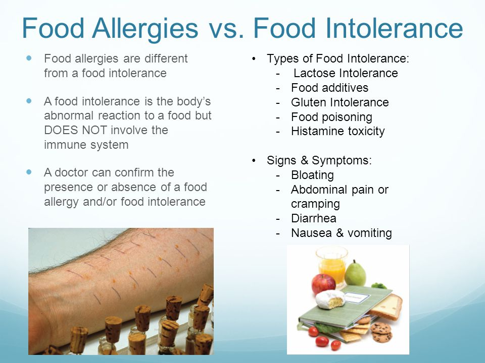 Can Food Intolerance Cause Dizziness