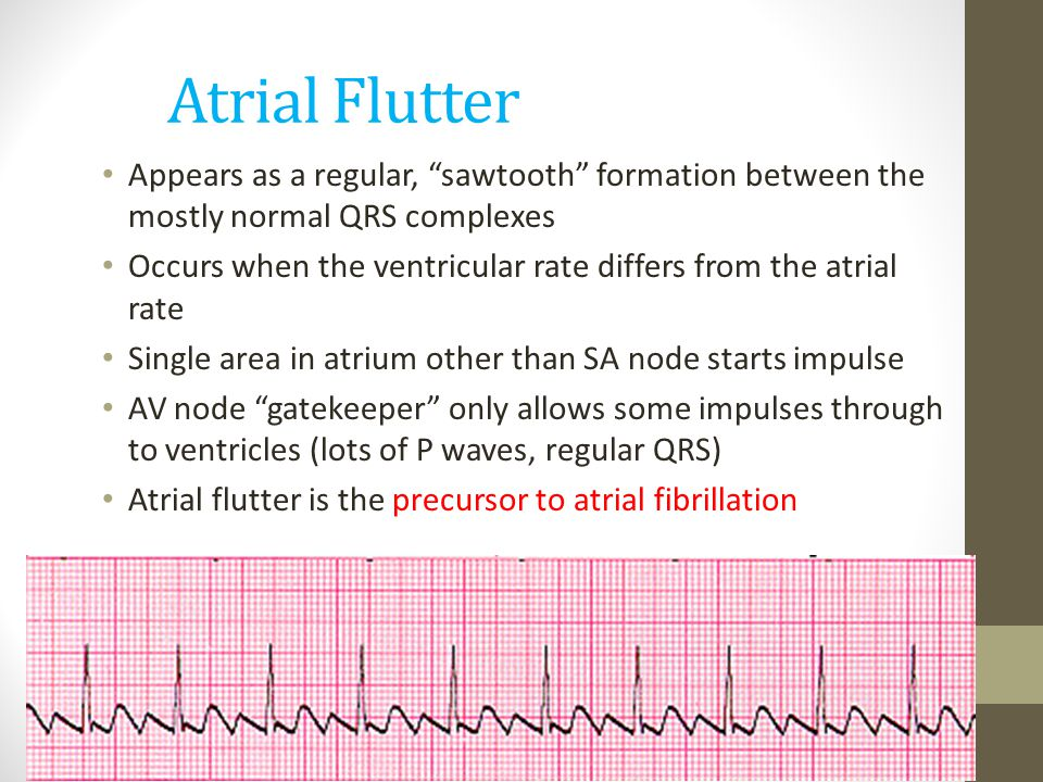 Atrial Flutter Appears as a regular, sawtooth formation between the mostly normal QRS complexes.