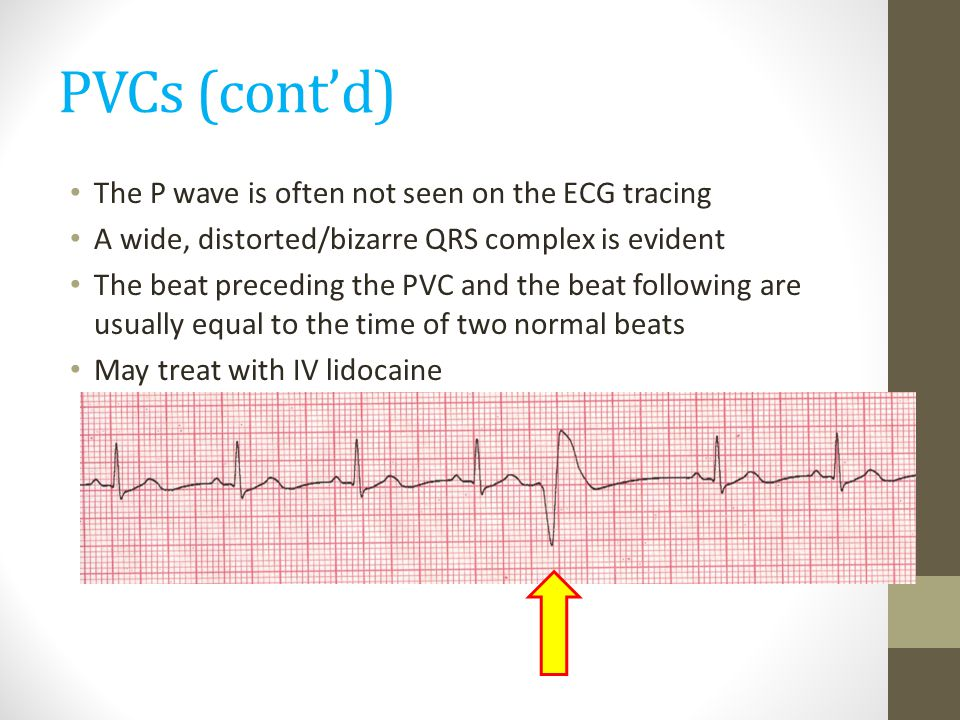 PVCs (cont'd) The P wave is often not seen on the ECG tracing