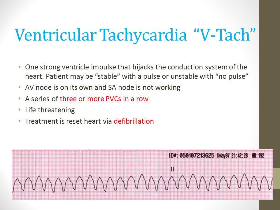 How To Treat Ventricular Fibrillation Dog
