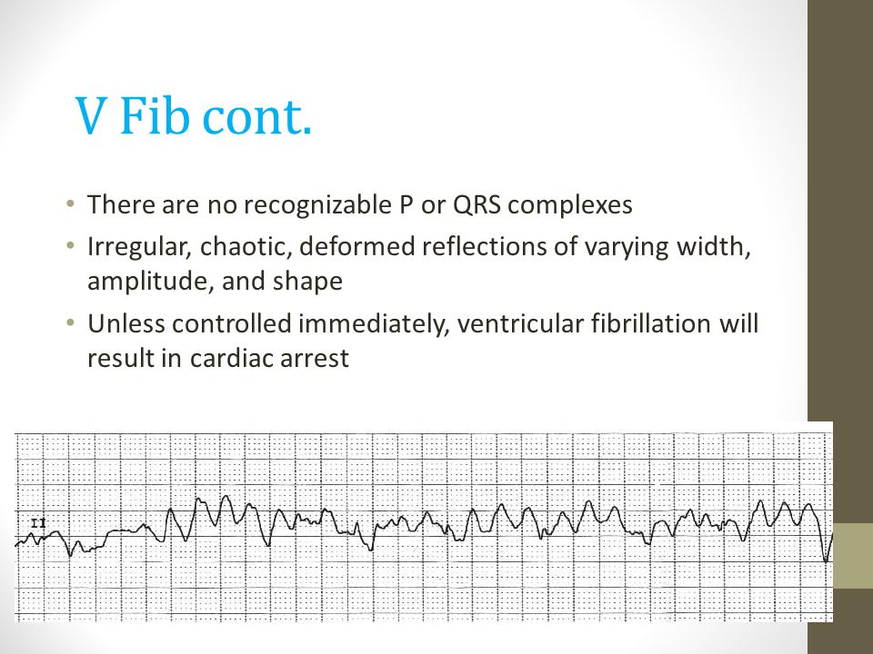 V Fib cont. There are no recognizable P or QRS complexes