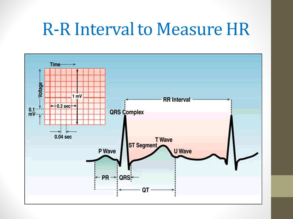 R-R Interval to Measure HR