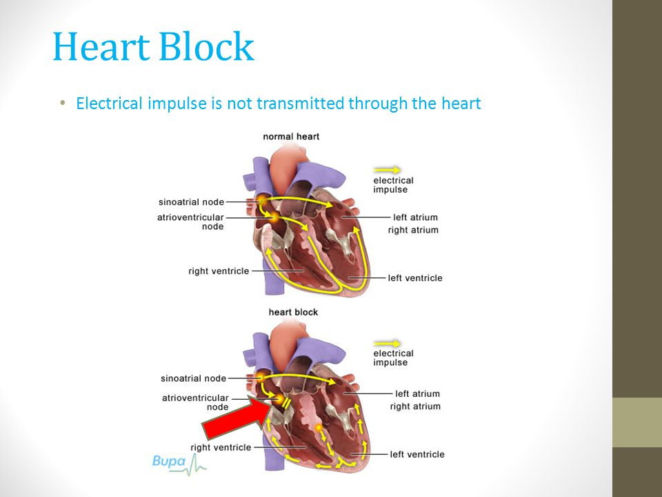 Heart Block Electrical impulse is not transmitted through the heart