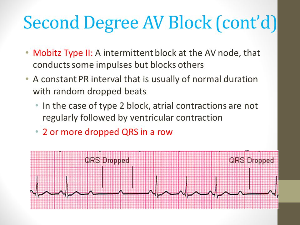 Second Degree AV Block (cont'd)