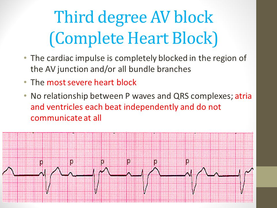 Third degree AV block (Complete Heart Block)