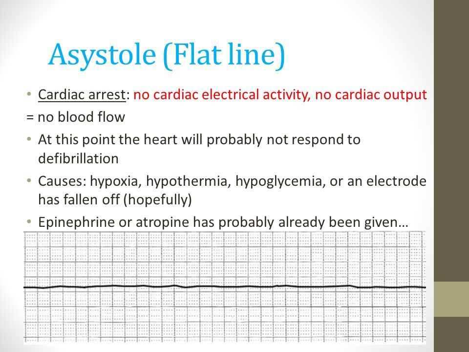 Asystole (Flat line) Cardiac arrest: no cardiac electrical activity, no cardiac output. = no blood flow.
