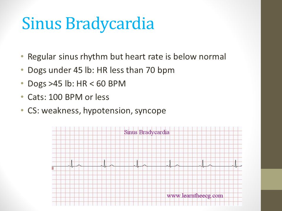 Sinus Bradycardia Regular sinus rhythm but heart rate is below normal