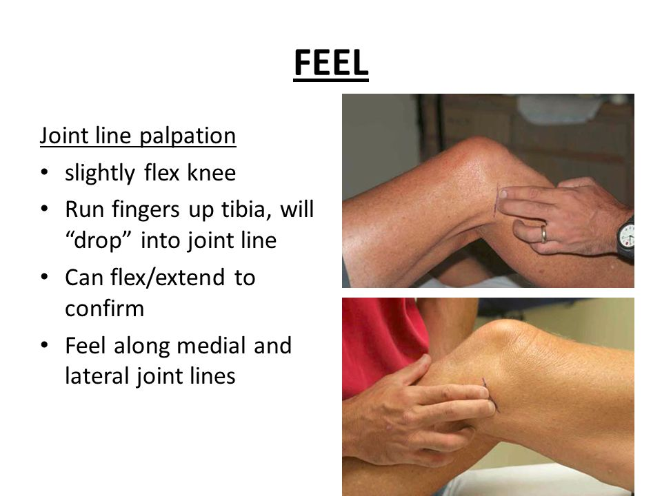Knee pain and the knee exam ppt video online download feel joint line palpation slightly flex knee ccuart Image collections