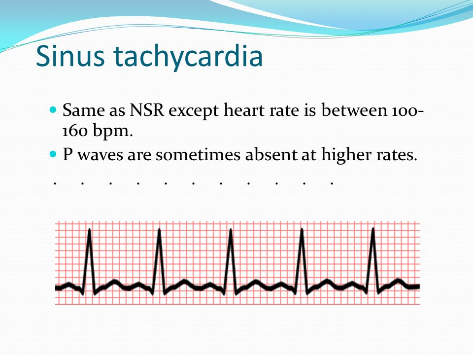 Sinus tachycardia Same as NSR except heart rate is between bpm. P waves are sometimes absent at higher rates.