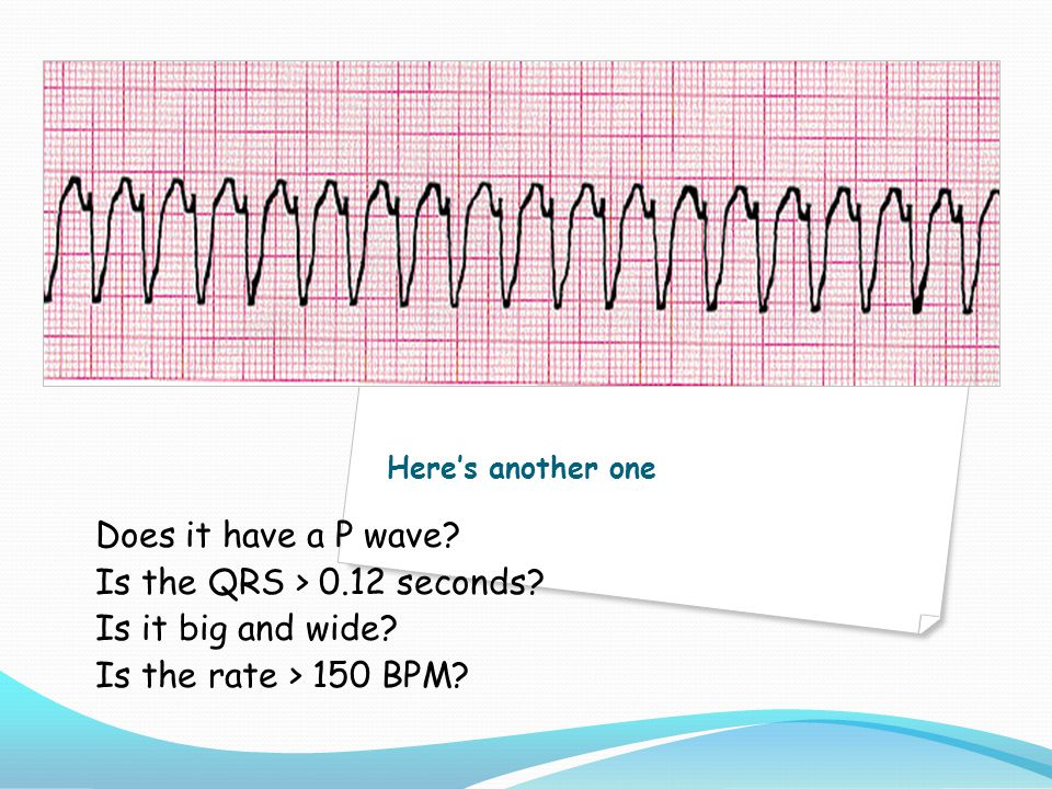 Does it have a P wave Is the QRS > 0.12 seconds