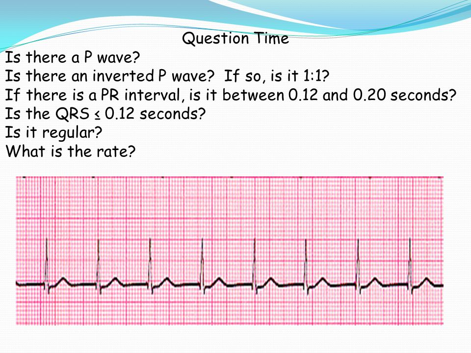 Question Time Is there a P wave Is there an inverted P wave If so, is it 1:1 If there is a PR interval, is it between 0.12 and 0.20 seconds