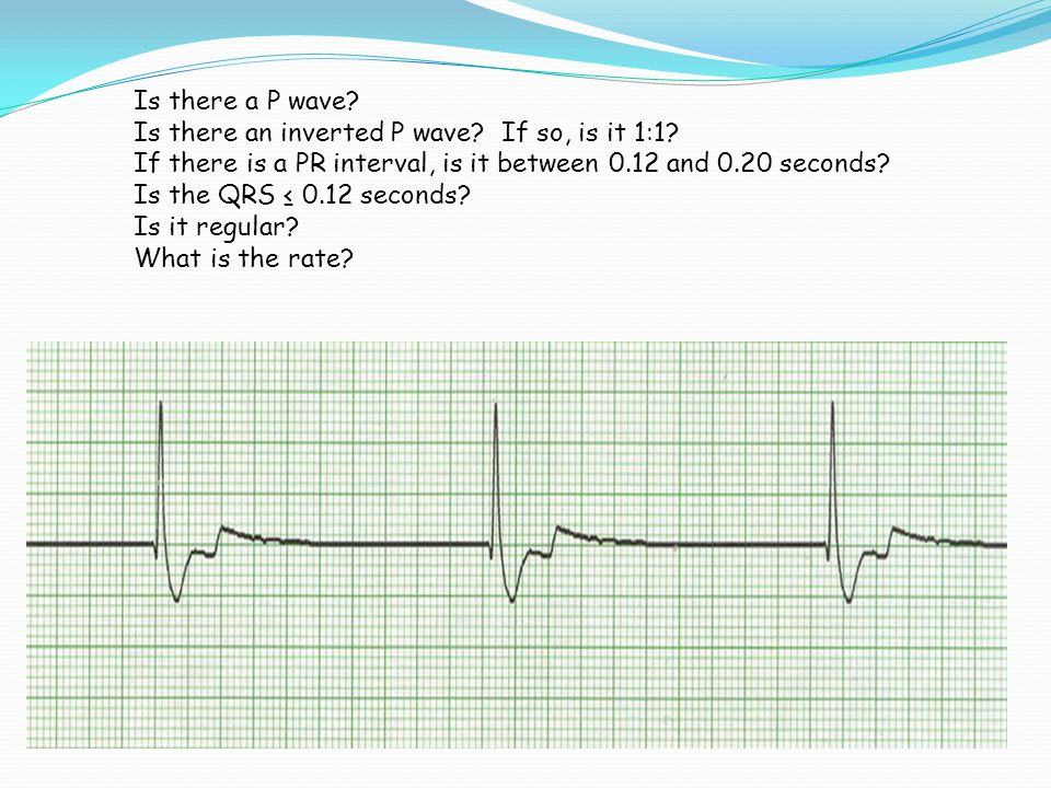 Is there a P wave Is there an inverted P wave If so, is it 1:1 If there is a PR interval, is it between 0.12 and 0.20 seconds