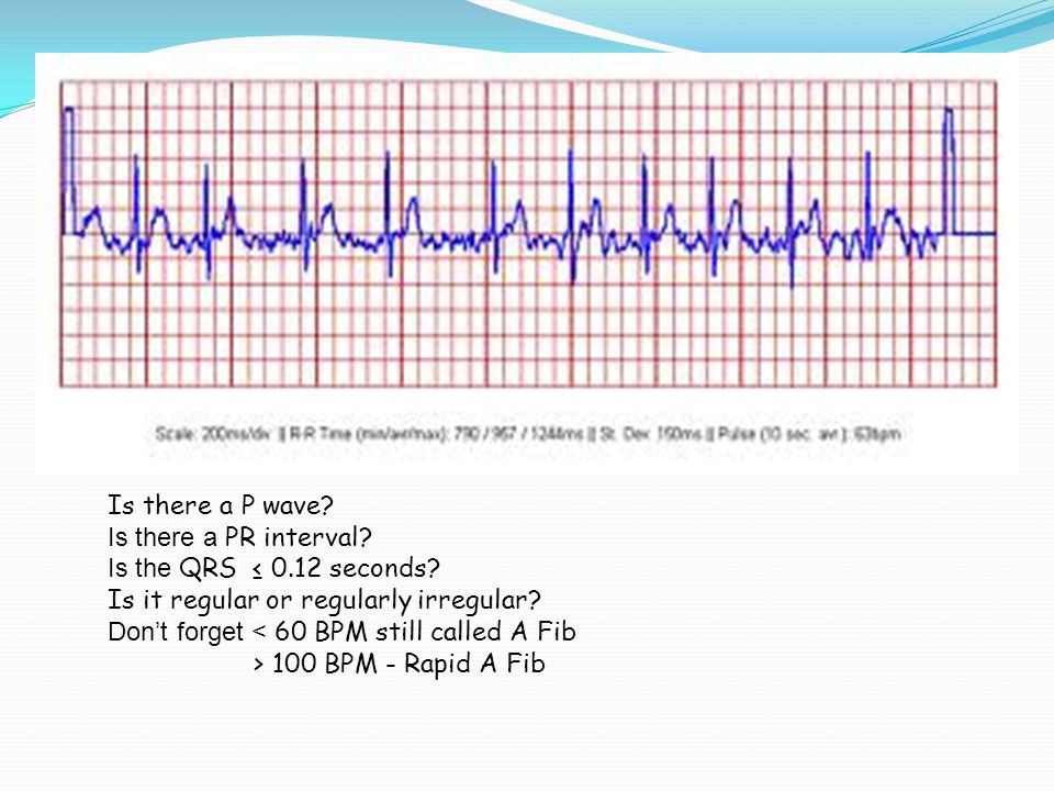 Is there a P wave. Is there a PR interval. Is the QRS ≤ seconds