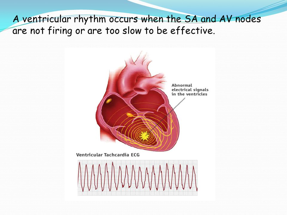 A ventricular rhythm occurs when the SA and AV nodes are not firing or are too slow to be effective.