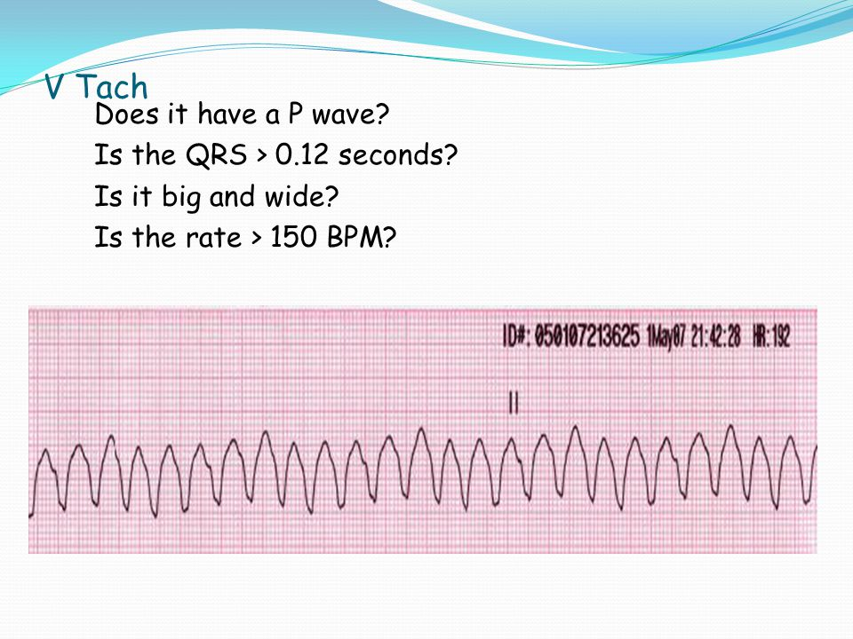 V Tach Does it have a P wave Is the QRS > 0.12 seconds Is it big and wide Is the rate > 150 BPM