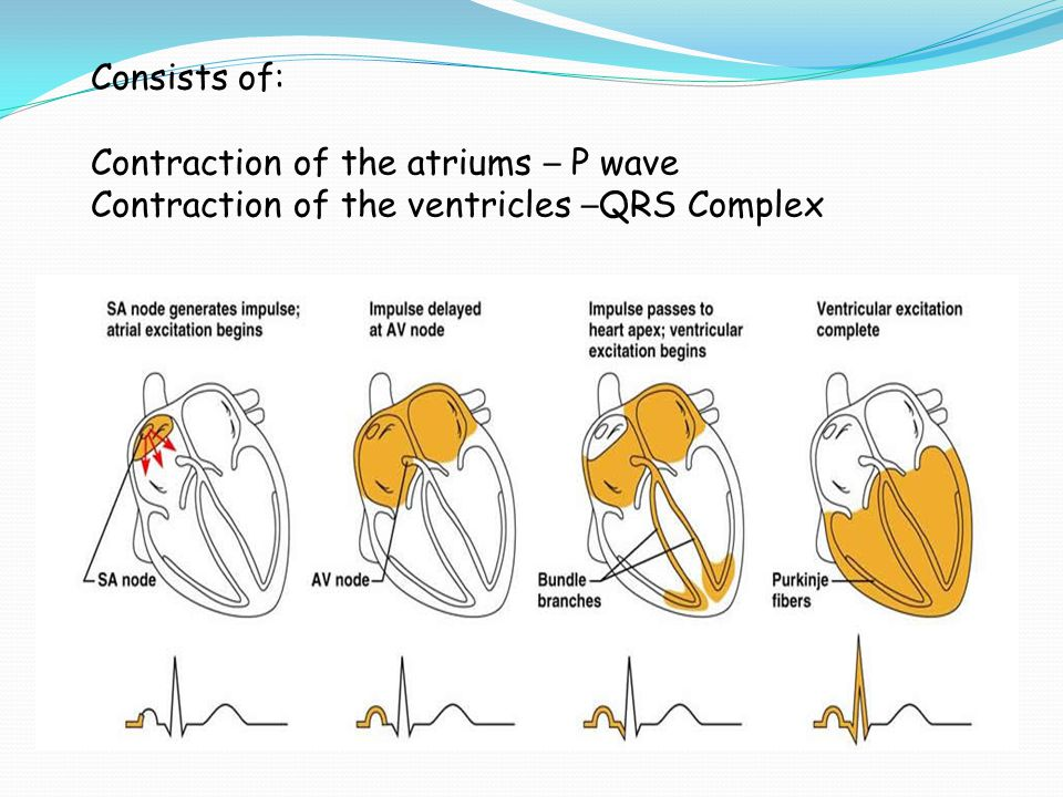 Consists of: Contraction of the atriums – P wave Contraction of the ventricles –QRS Complex