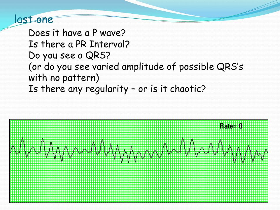 last one Does it have a P wave Is there a PR Interval