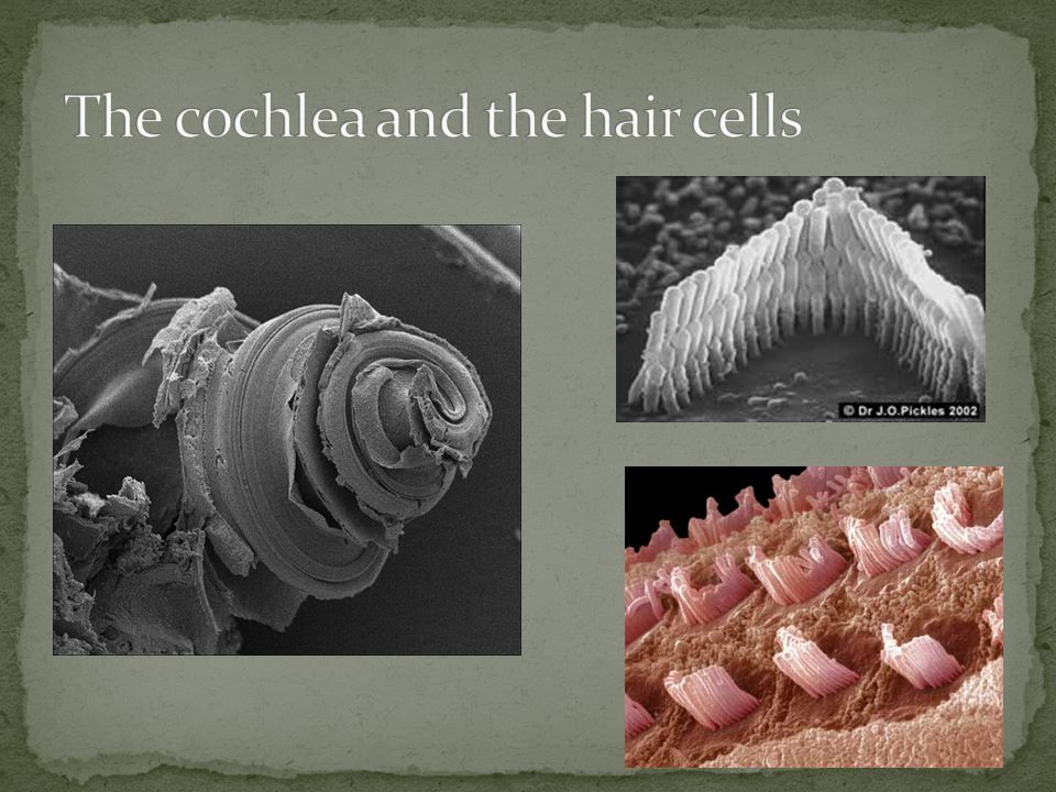The cochlea and the hair cells