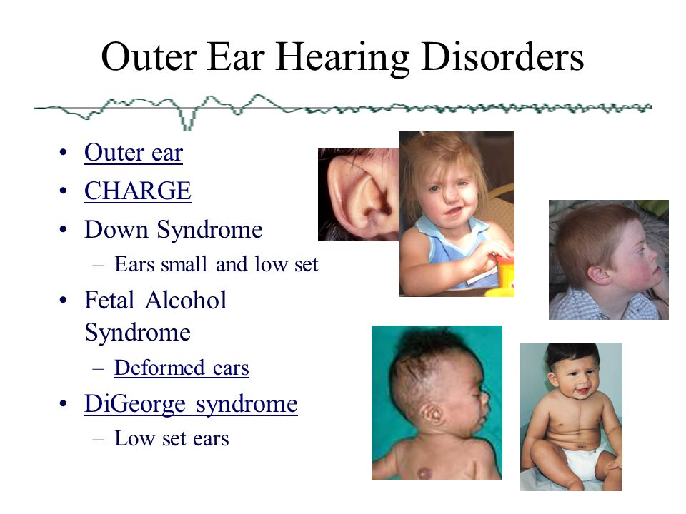 Anatomy Physiology And Disorders Of The Hearing Ppt Video Online