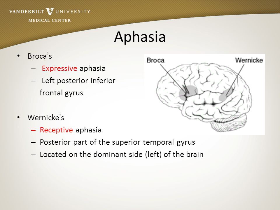wernicke's aphasia Psychology definition of wernicke's aphasia: a loss of the capacity to understand noises or speech , specifically to comprehend or.