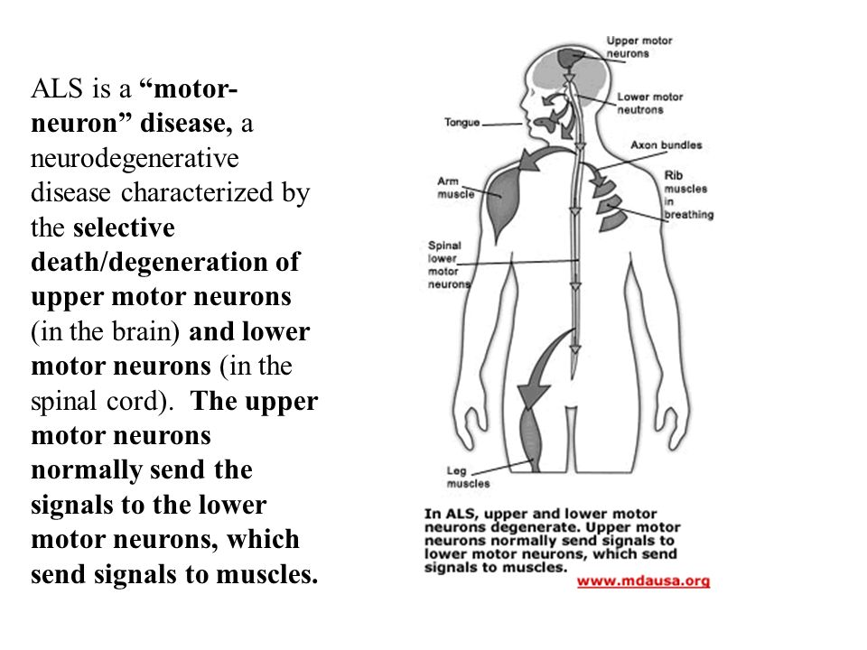 Amyotrophic lateral sclerosis als lou gehrig s disease What is lower motor neuron disease
