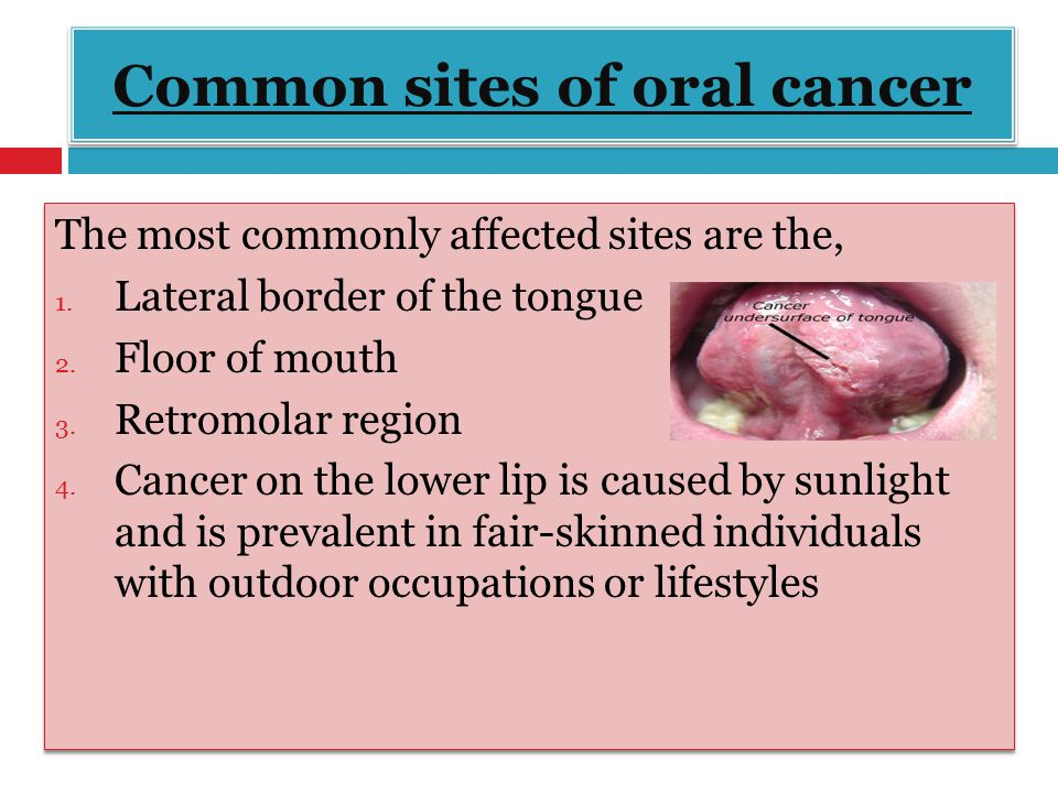 Dr shahzadi tayyaba hashmi ppt video online download for Floor of mouth cancer