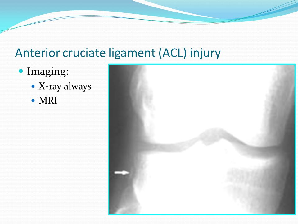 Knee Injuries Ppt Video Online Download