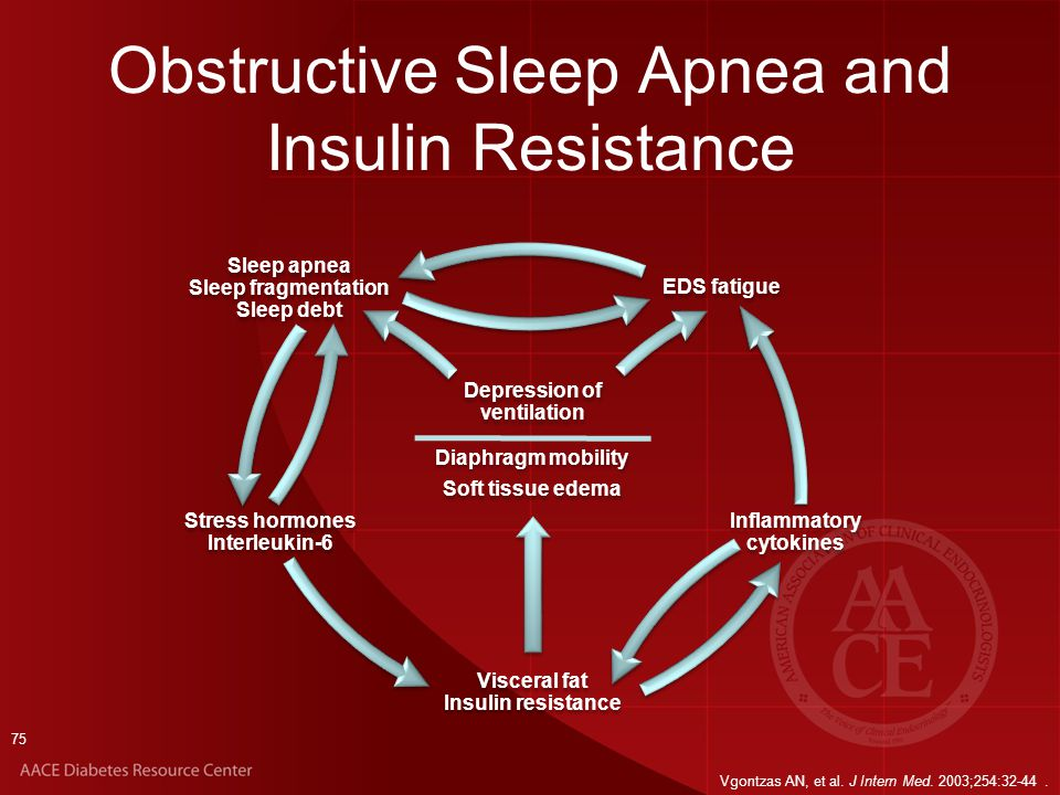 sleep apnea and depression pdf