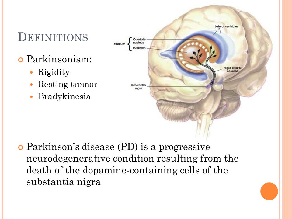 Parkinsonism Dr Jamie ...