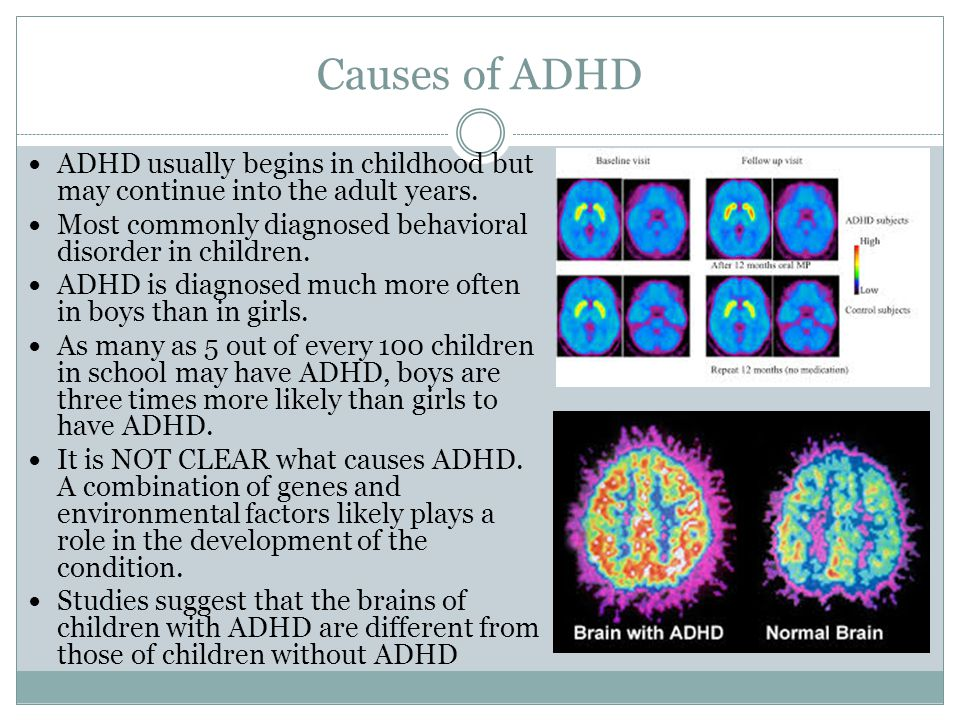 adhd and what causes the childhood The causes and treatments of add-adhd  parents who suspect their child might have add or adhd and parents of children  attention-deficit / hyperactivity disorder.