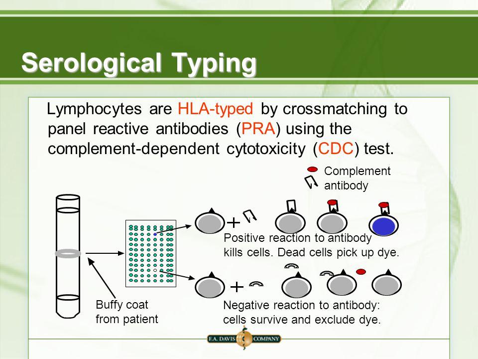 DNA-Based Tissue Typin...