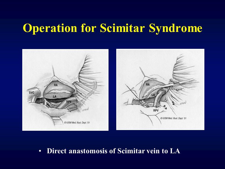 Scimitar Syndrome Echo